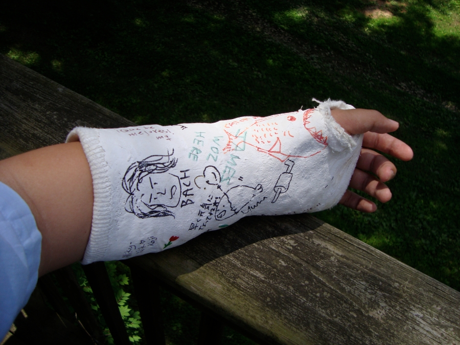 My wrist in cast